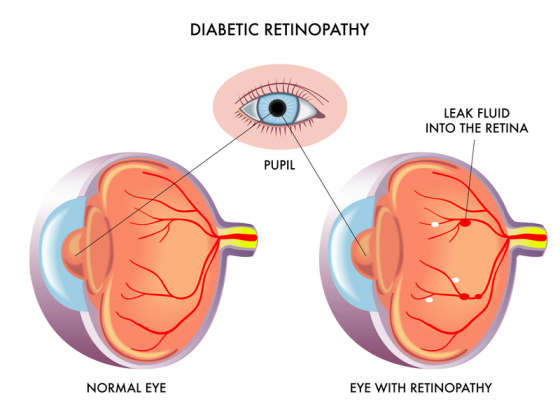 comparision of a normal eye to a eye with retinopathy