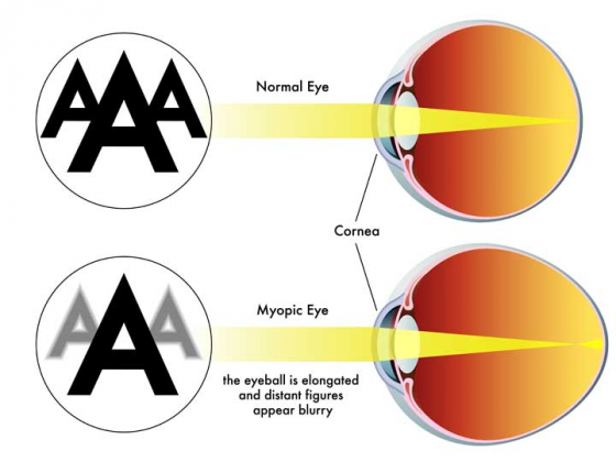 Diagram to show a myopic eye and an eye without myopia