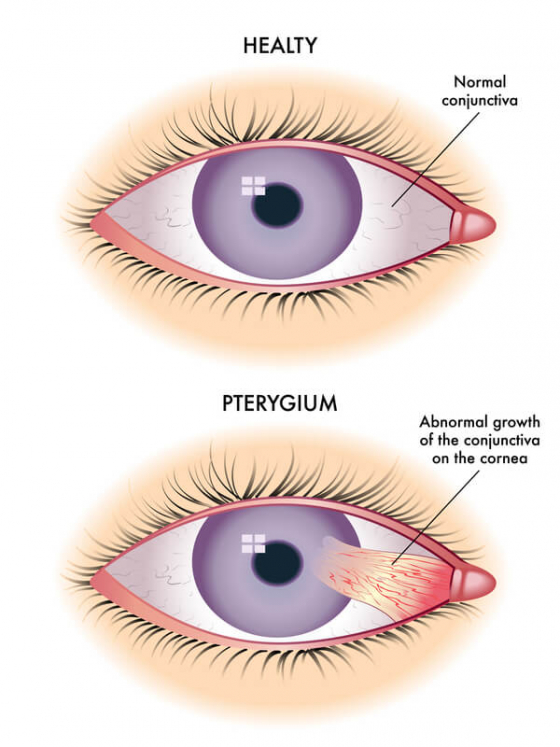 comparision of a normal eye to a eye with Pterygium