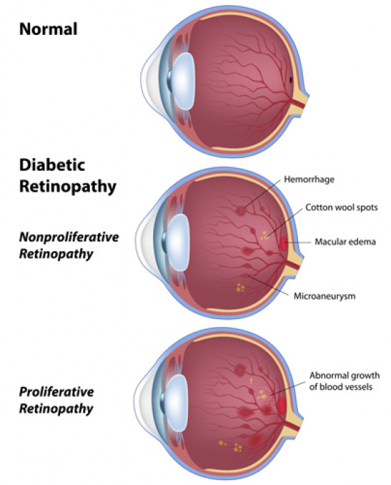 Diagram showing nonproliferative and proliferative retinopathy