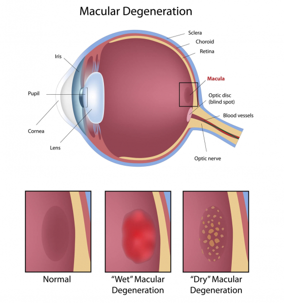 explaining macular degeneration