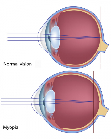 Myopia is caused by an irregularity in the shape of the lens or length of the eye
