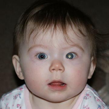 Young child with retinoblastoma symptom